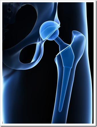 Back Pain Somerset NJ Joint Replacement