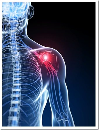 Shoulder Pain Somerset NJ Rotator Cuff Syndrome